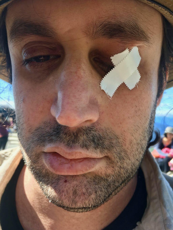 Tapped Eye